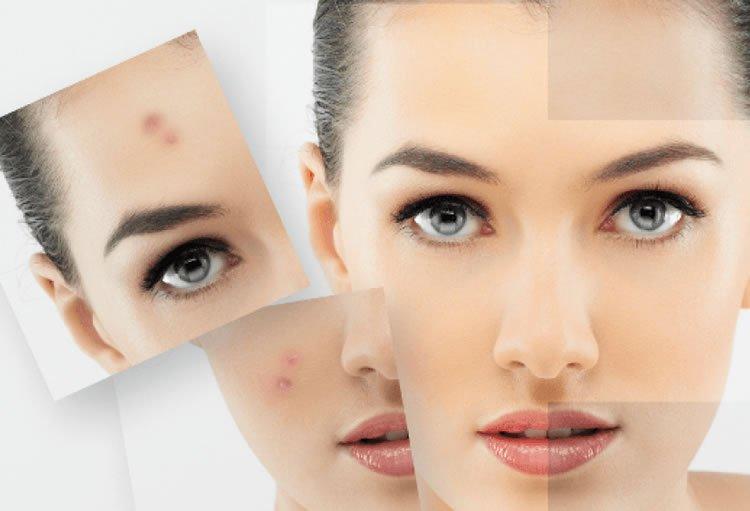 1-acne-treatment